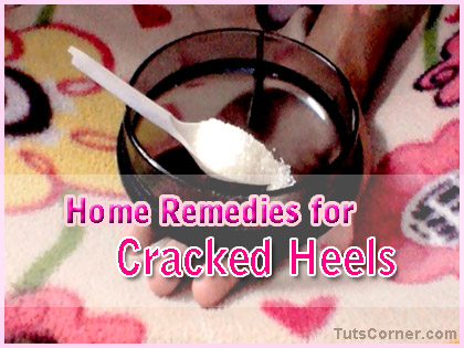cracked-heels-home-remedy