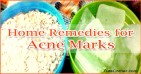 How to Remove Acne Marks Fast, Heal Acne Fast and Naturally