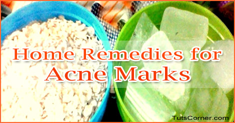 home-remedies-for-acne-marks