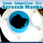 Natural Remedies to Remove Stretch Marks at Home