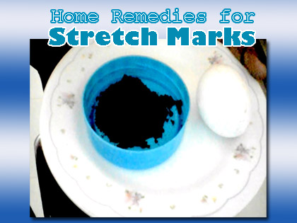 stretch-marks-home-remedies
