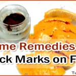 Home Remedies to Get Rid of Black Marks on Face