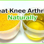 How to Treat Arthritis in the Knee Naturally at Home