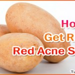 Home Remedies to Get Rid of Red Acne Scars