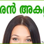Home Remedies for Dandruff in Malayalam