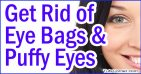 Top 10 Tips to Get Rid of Eye Bags and Puffy Eyes