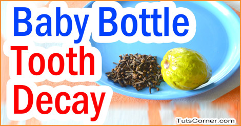 Tips To Prevent Baby Bottle Tooth Decay Tuts Corner
