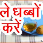 Home Remedies To Remove Dark Spots in Hindi