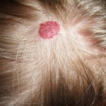 Top 10 Home Remedies for Pimples in Head Scalp